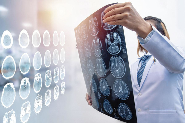 Un algorithme détecte en une seconde les hémorragies cérébrales