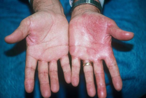 Un traitement contre le psoriasis approuvé dans l'UE