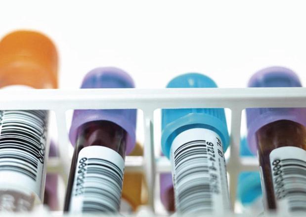 11,3 miljoen minder ureumtests