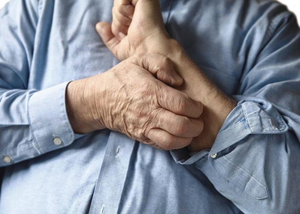 Psoriasis: quand le traitement systémique s'impose