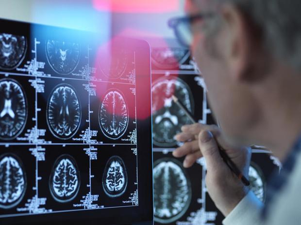 Hersenen bij alzheimer: crime scene onder de loep