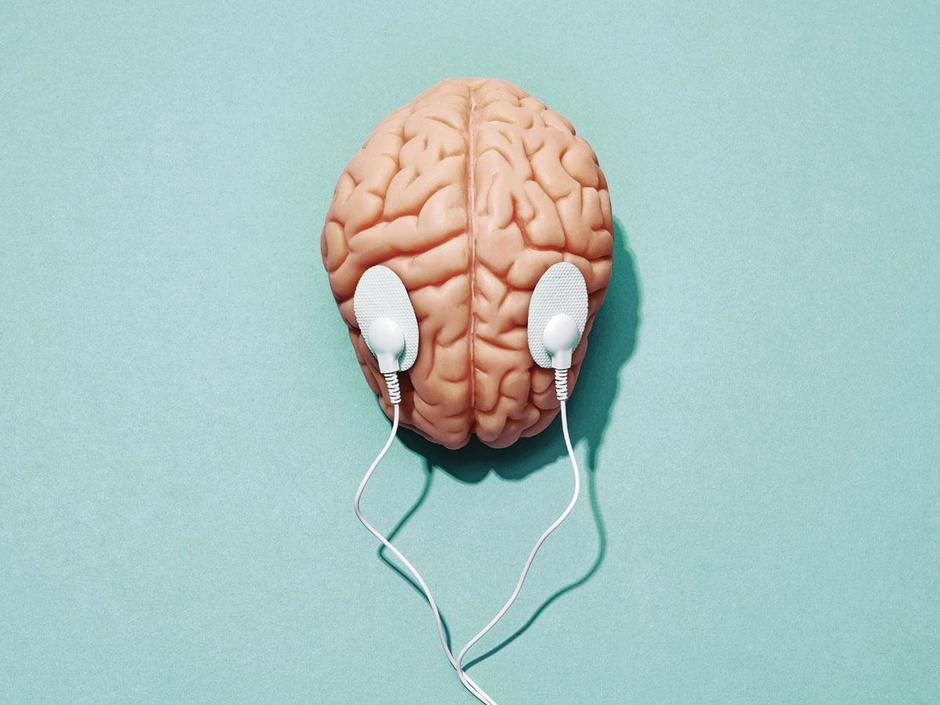 Prikken in het brein tegen dwangstoornis: 'Mensen krijgen als het ware een nieuw stel hersenen'