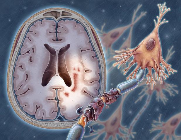 Nieuwe perspectieven bij multiple sclerose