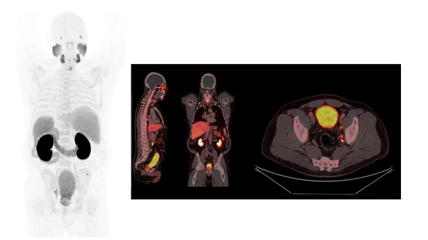 UZ Gent ontwikkelt radiofarmacon F-18-PSMA-11 op grote schaal voor snellere en betere detectie van (uitgezaaide) prostaatkanker