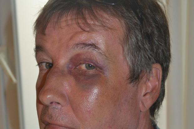 Zinloos geweld door drie agressieve jongeren in Deerlijk