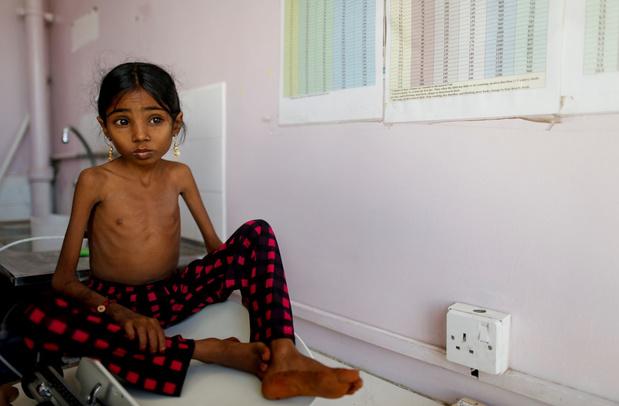 Jemen: '10 miljoen bewoners ernstig ondervoed'
