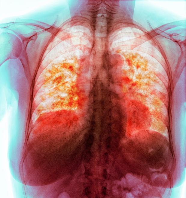 Nieuwe biomarker bij longfibrose?