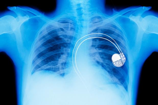 Création d'un stimulateur cardiaque expérimental entièrement résorbable