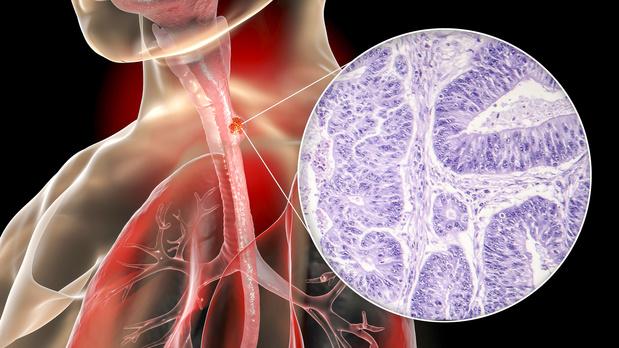 L'ajout de panitumumab au cisplatine-fluorouracil augmente uniquement les effets indésirables
