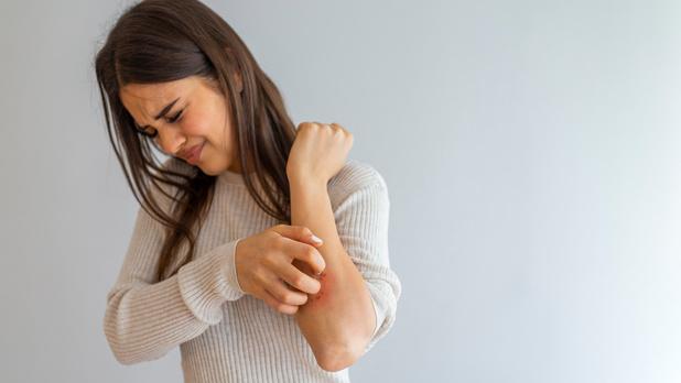 Découverte d'une nouvelle approche thérapeutique du psoriasis