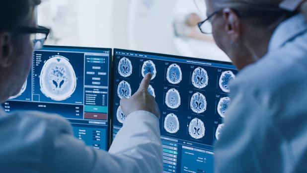 SARS-CoV-2 spaart de hersenen niet
