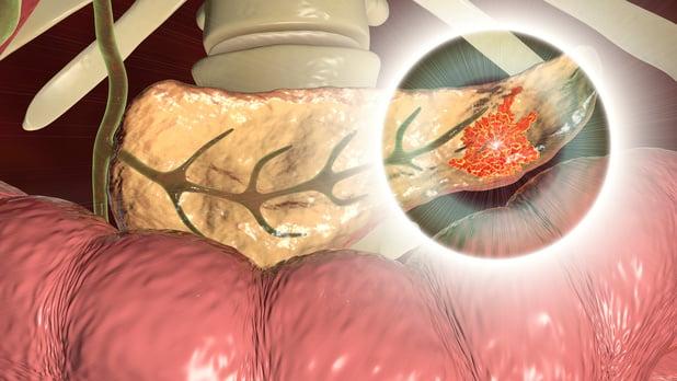 20% meer pancreasingrepen in UZ Gent