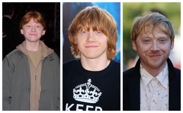 Qu'est devenu Rupert Grint, enfant star de la saga Harry Potter ?