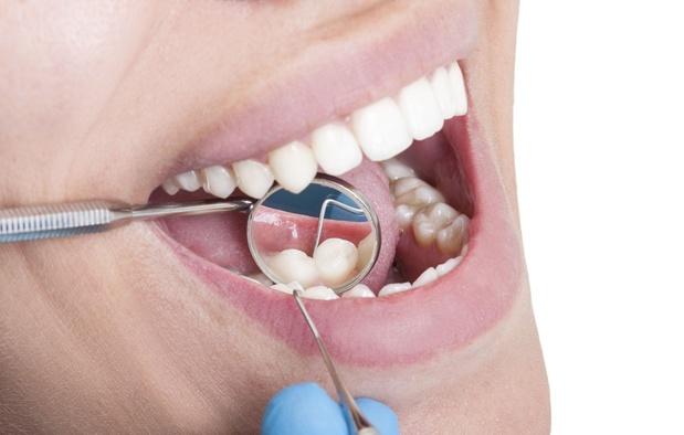 Caries : un gel serait capable de réparer l'émail dentaire