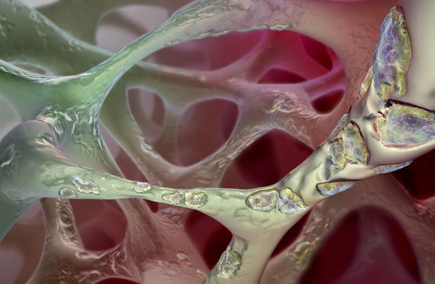 L'ostéoporose du patient vivant avec le VIH n'est pas exclusivement liée à la perte en DMO