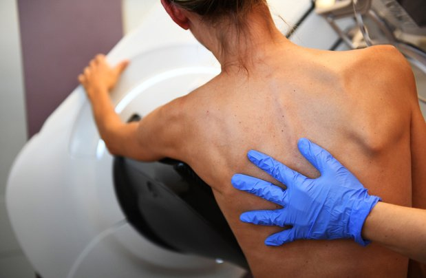 Digitale tomosynthese van de borsten versus digitale mammografie