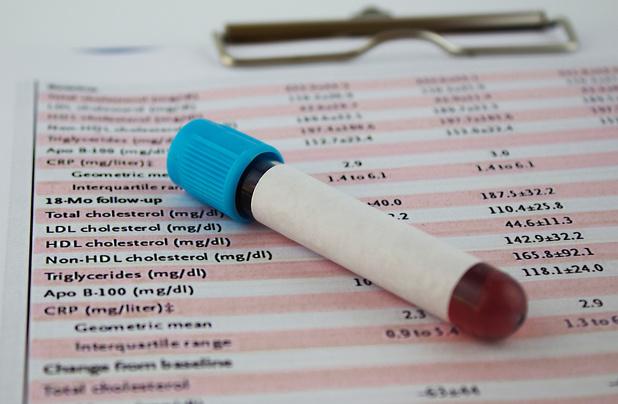 Meten is weten: wanneer moet je je cholesterol laten bepalen?