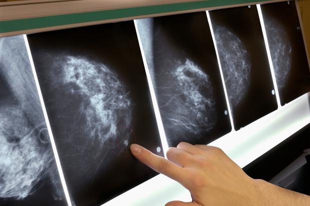 Cancer du sein : les polluants organiques le rendraient plus agressif
