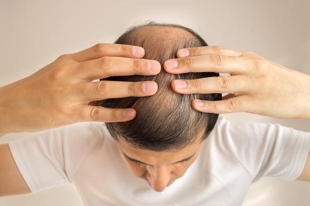 Sévérité de la Covid-19 chez les hommes : un biomarqueur lié à la perte de cheveux