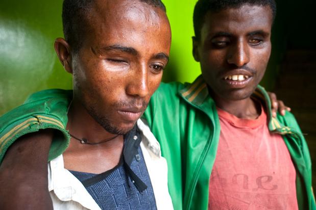 Honderden miljoenen mensen lijden onnodig aan oogproblemen