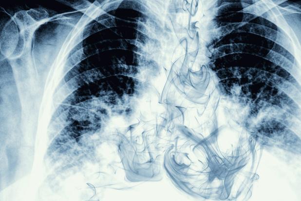 Kunnen je longen zich herstellen nadat je stopt met roken?