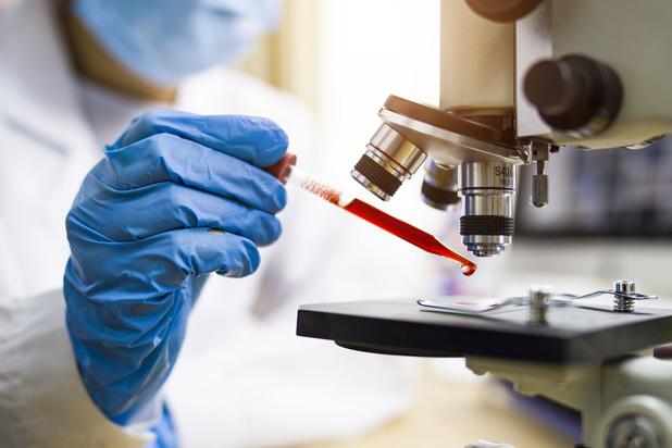 4.000 kankerdiagnoses minder in België in 2020