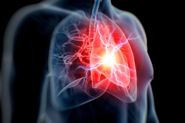 Nieuwe bewaringstechniek vergroot de kans op succes bij de harttransplantatie