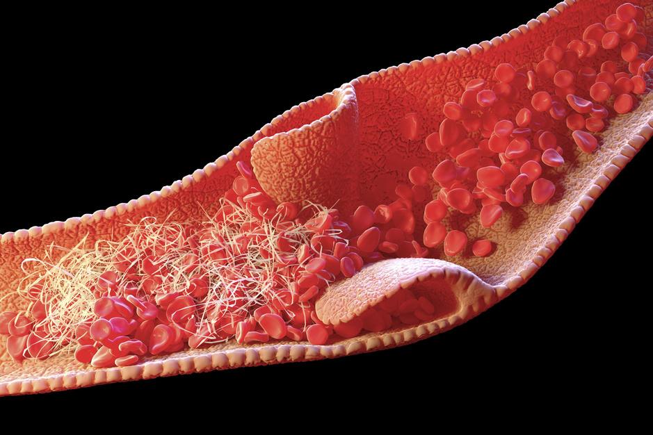 'AstraZeneca niet de oorzaak van trombose': maken we ons onnodig zorgen?