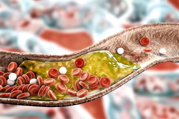 AVC hémorragique : un taux de cholestérol trop bas accroît le risque