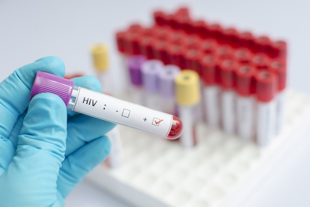 Des chercheurs de l'UZ Gent découvrent où se cache le virus du sida