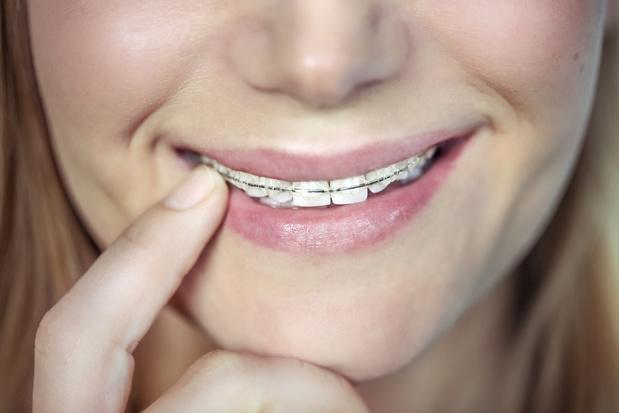 Extra tandverzekering steeds populairder