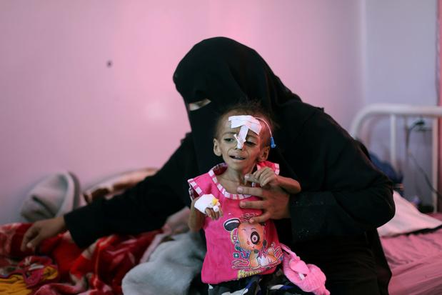VN waarschuwt voor miljoenen hongerdoden in Jemen