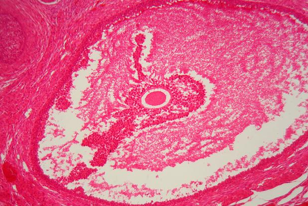 Le trébananib n'a pas de valeur ajoutée pour le traitement de première ligne du cancer ovarien avancé
