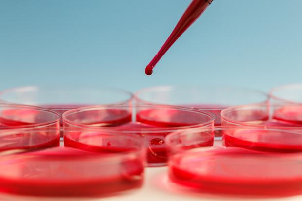 Covid-19: de distributie van de grootte van de rode bloedcellen (RDW) zou de ernst kunnen voorspellen