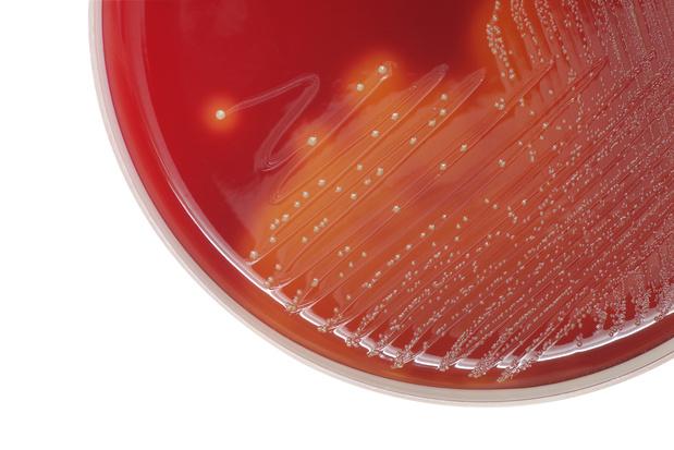 Een nieuwe stam van groep A-streptokokken zou de heropflakkering van scarlatina in Groot-Brittannië verklaren