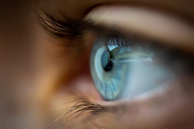 Imec en UGent stellen slimme contactlens met kunstmatige iris voor