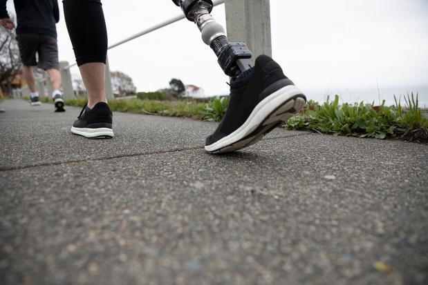 Une prothèse permet de rétablir les sensations de patients amputés