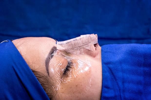 Huidkanker: een zeer originele reconstructie van de neus
