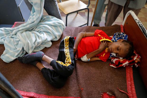 VN-organisaties slaan alarm over hongersnood in Tigray