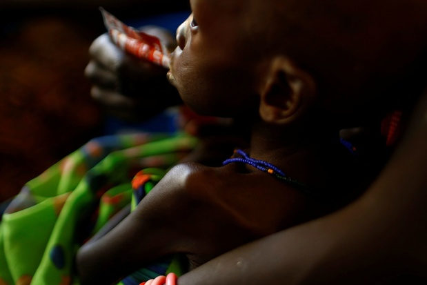 Coronavirus: la pandémie aggrave la malnutrition des enfants
