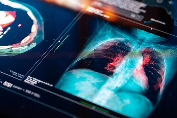 Cancer du poumon : il n'est jamais trop tard pour en finir avec le tabac