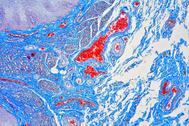 Prise en charge des hémorragies gastro-intestinales hautes non variqueuses