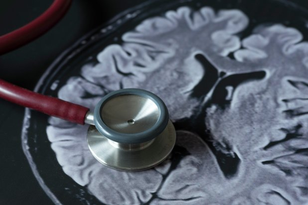 Beroertecentra en MRI in het Staatsblad