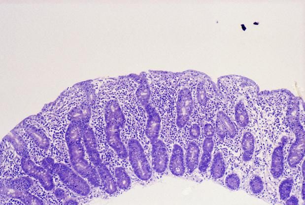 Rol van T-lymfocyten bij coeliakie