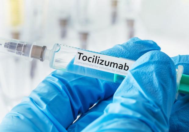 Covid-19: le tocilizumab réduit la mortalité, confirme une vaste étud