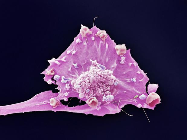 Zes maanden trastuzumab volstaan bij HER2-positieve, vroege borstkanker