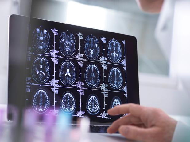 Covid-19: hersenschade, ook bij patiënten zonder symptomen