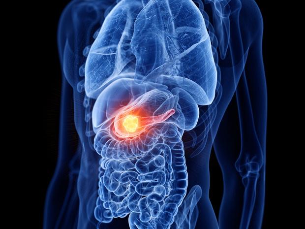 Une nouvelle découverte pourrait permettre de mieux comprendre le cancer du pancréas