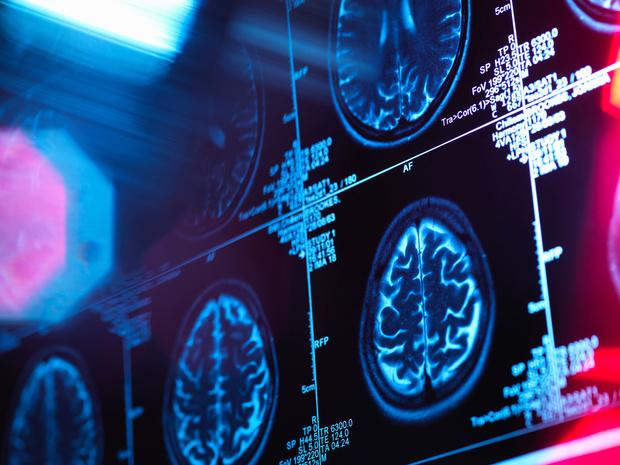Le prix Nobel de médecine 2021 récompense la découverte de capteurs de température et du toucher