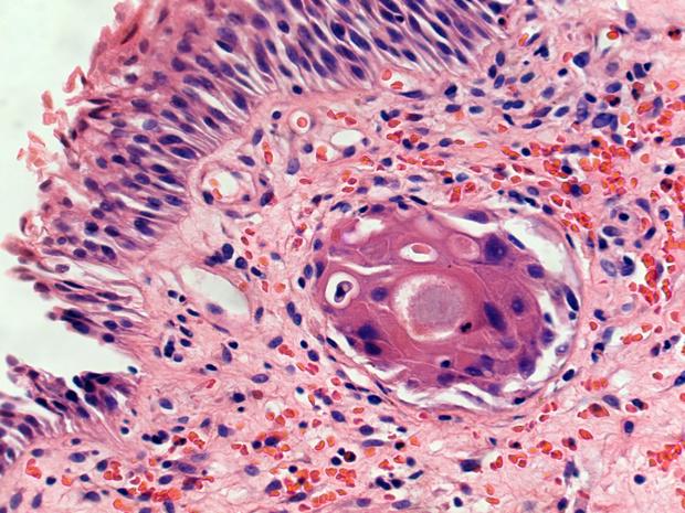 Gemetastaseerd urotheliaal carcinoom: ramucirumab verbetert progressievrije overleving